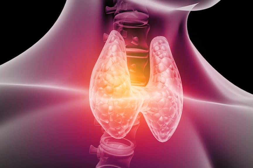 Managing Hashimotos Disease Holistically Part 2
